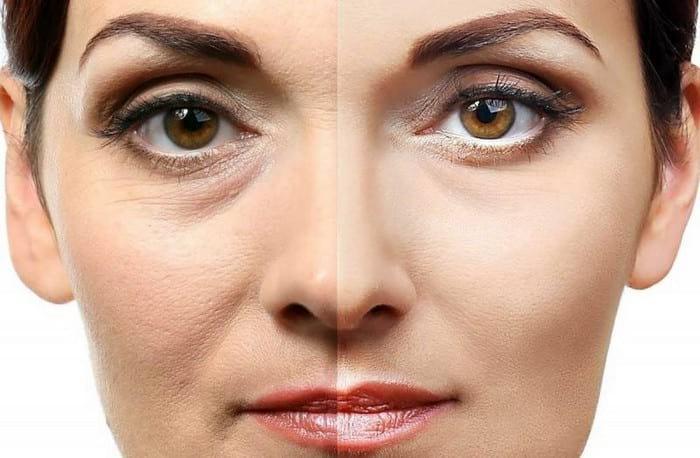 Как убрать мелкие морщины вокруг глаз в домашних условиях