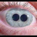 Топ-10 людей с аномальными генами - Секреты вдохновения