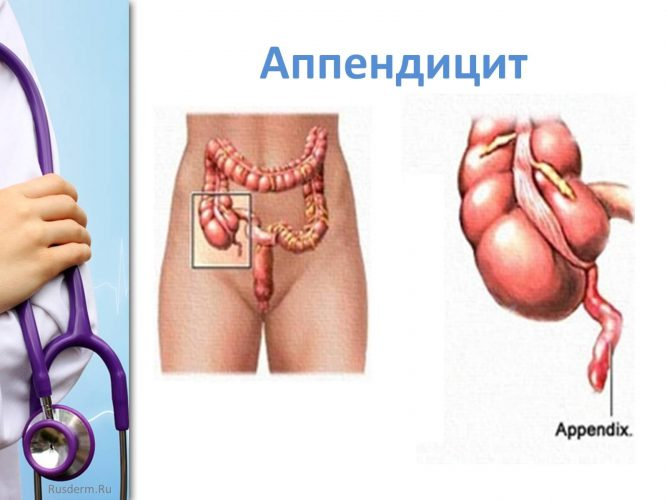 Болит правый бок живота: причины и лечение