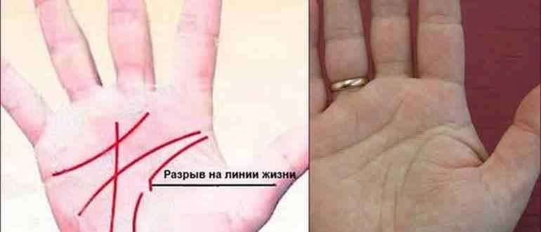 Что означает разрыв на линии жизни на руке - стоит ли переживать?