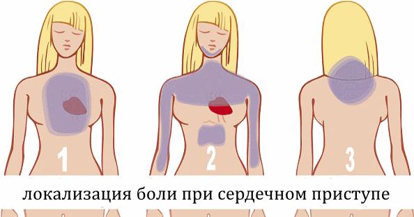 Боль под левой лопаткой сзади со спины: причины, симптомы и лечение