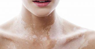 Белые пятна на коже: причины и лечение