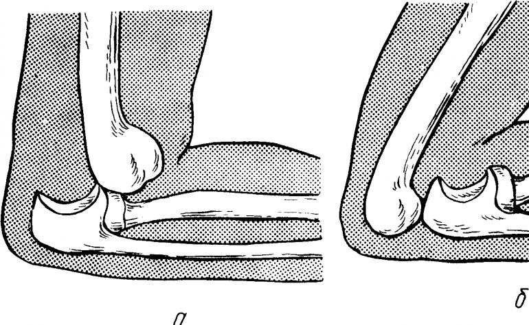 Вывихи локтевого сустава