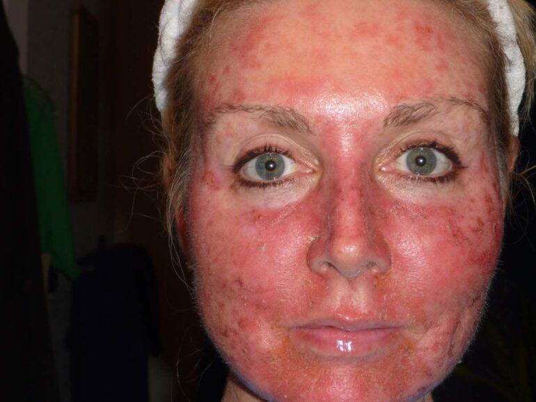 Солнечные ожоги на лице женщины