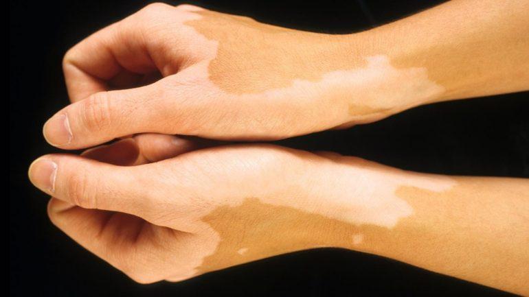 Пигментные пятна на руках: причины и лечение