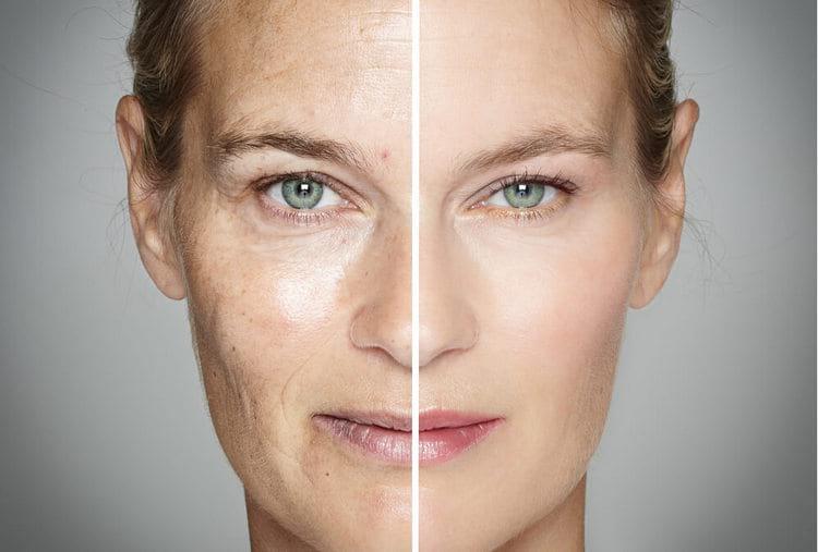 Как подтянуть лицо после 50 лет без хирургического вмешательства