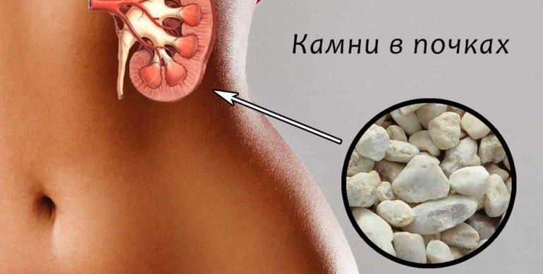 Рецепты народной медицины для лечения заболеваний почек