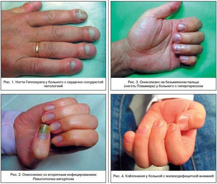 ногти у больных людей