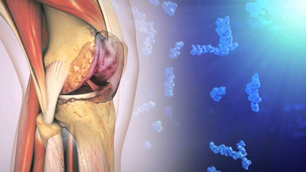 Остеоартроз коленного сустава: симптомы и лечение