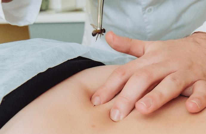 Лечение грыжи позвоночника пчелами