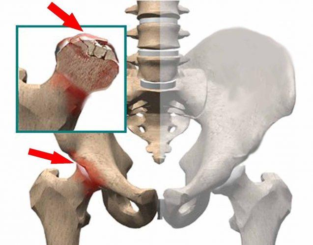 Как делают замену тазобедренного сустава: все об операции