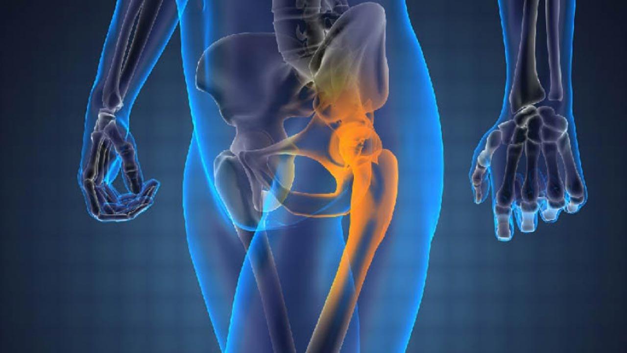Когда замена тазобедренного сустава необходимо