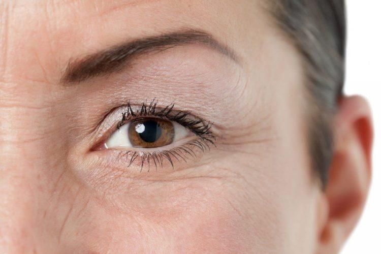 как убрать гусиные лапки в уголках глаз