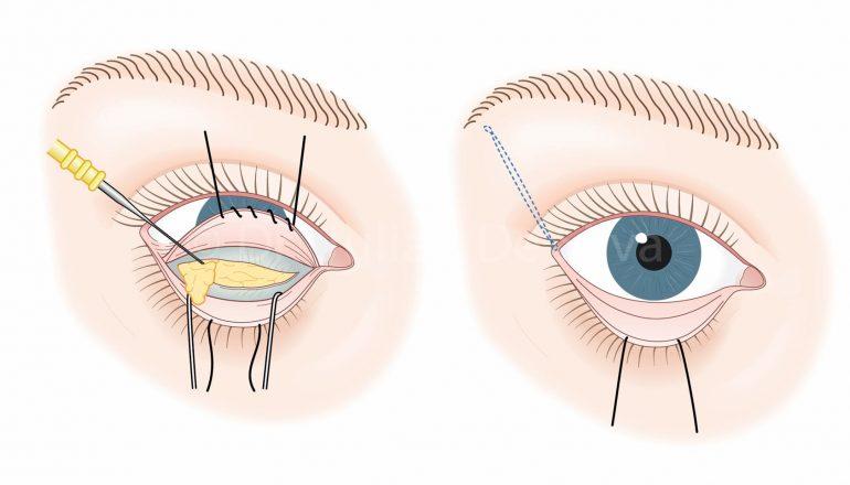 Как убрать грыжи под глазами: эффективные методы