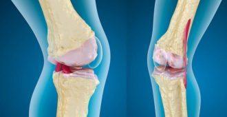 Как лечат остеоартроз коленного сустава, виды и стадии заболевания