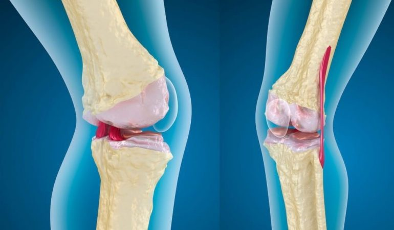 гоно артроз коленного сустава