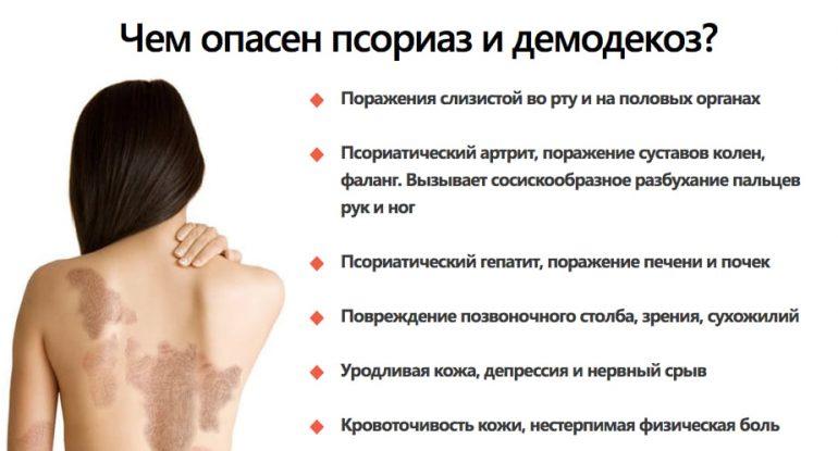 Применение мази Радевит для лица, медицинские показания и противопоказания