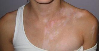 Белые пятна на коже