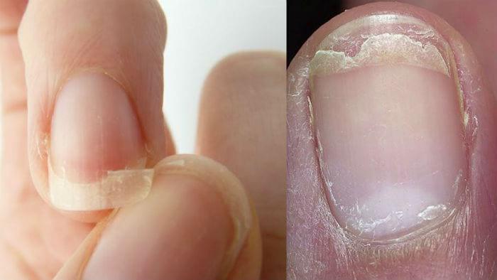 слоение, истончение ногтей