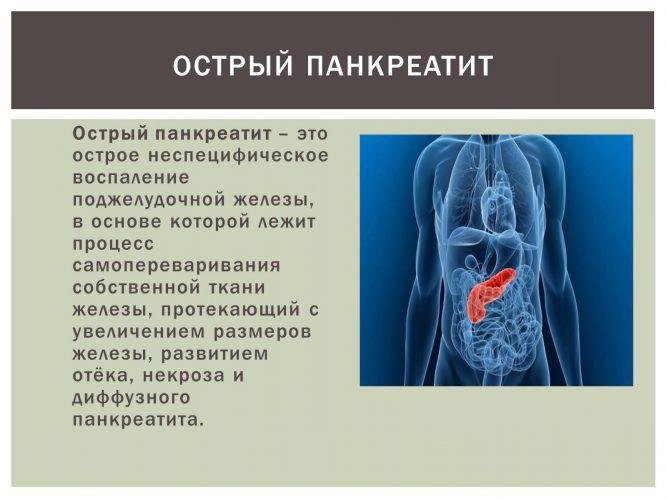 Острый панкреатит