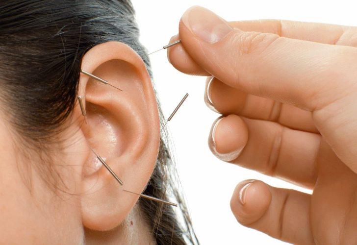 Иглоукалывание ушей