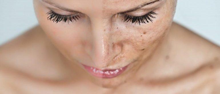 Как удалить пигментные пятна на лице: эффективные методы