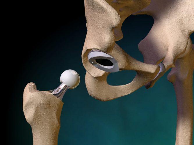 Замена тазобедренного сустава: операция