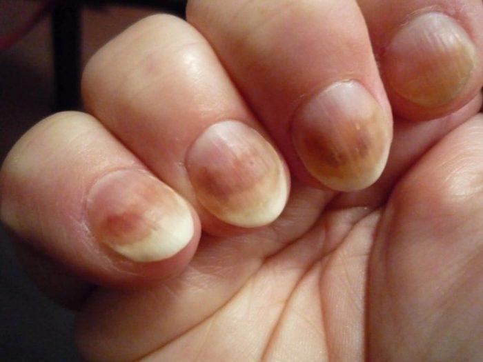 Нарушение структуры ногтя
