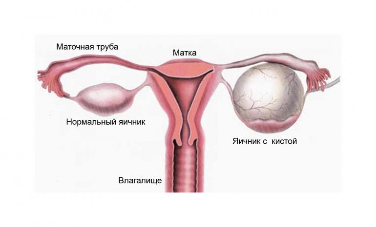 Красная щетка для женщин: показания к применению