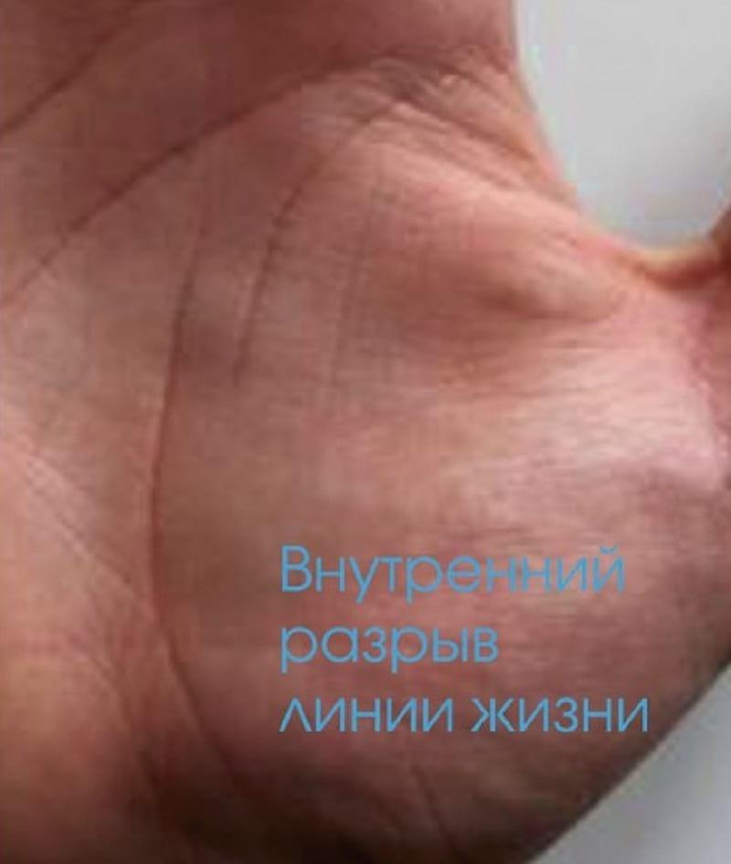 Что означает разрыв линии жизни на руке