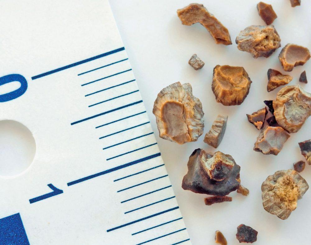 Камни в желчном пузыре: причины и лечение