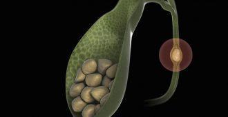 Как лечить камни в желчном пузыре и причины их появления