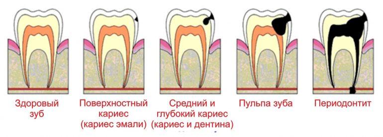 Переодонтит